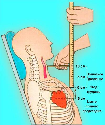Измерение венозного давления в яремных венах