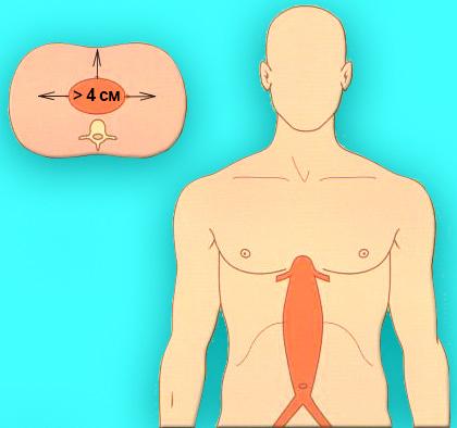 Торакоабдоминальная аневризма аорты