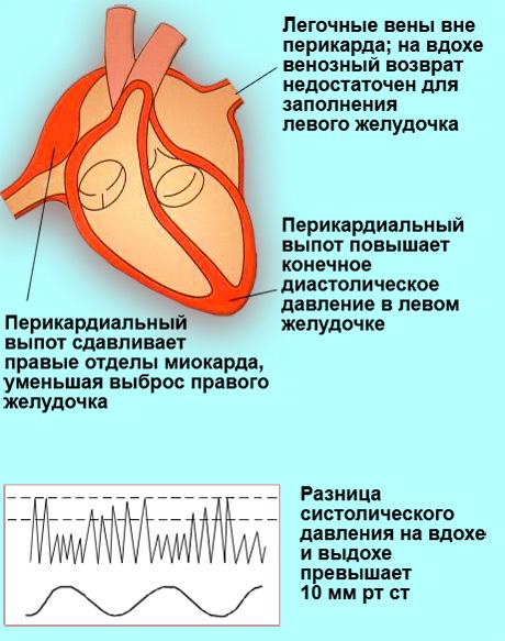 Парадоксальный пульс