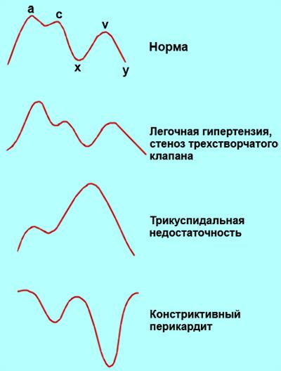 Патологическое изменения кривой венозного пульса