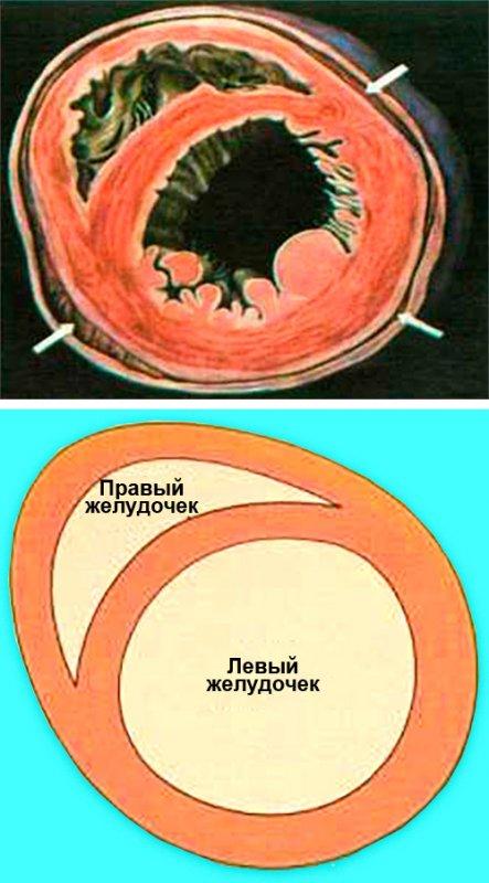 Поперечный разрез миокарда