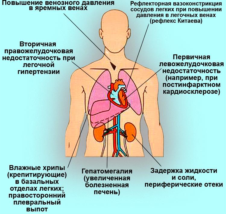 Бивентрикулярная сердечная недостаточность