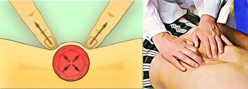 Пальпация брюшной аорты
