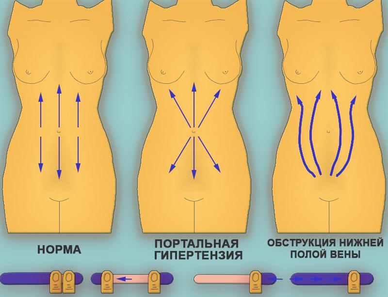Расширение вен передней брюшной стенки