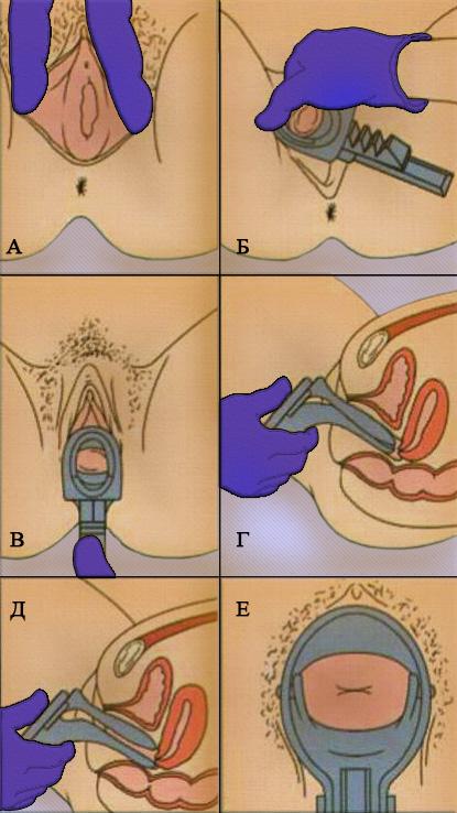Введение гинекологического зеркала