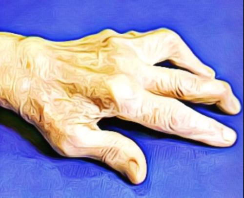 Деформация пальцев кисти