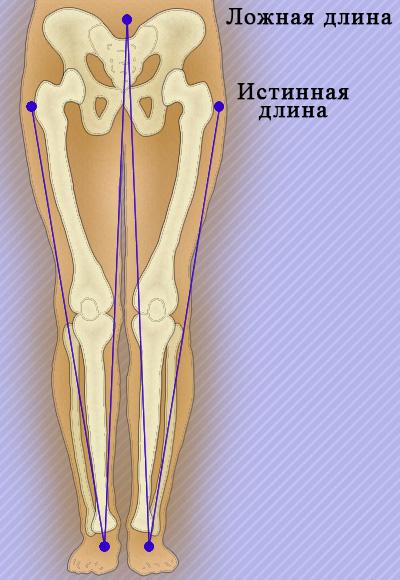 Тазобедренные суставы