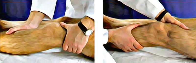 Боковые связки коленного сустава