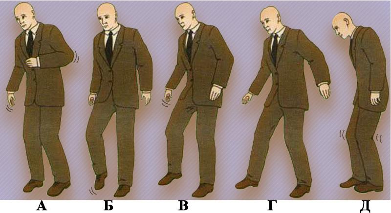 Изменение походки