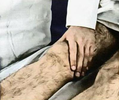 Исследование клонуса коленной чашечки