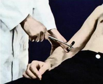 Исследование рефлекса сухожилия двуглавой мышцы