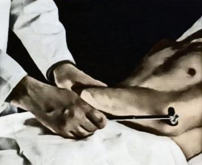 Исследование сухожильного рефлекса трехглавой мышцы