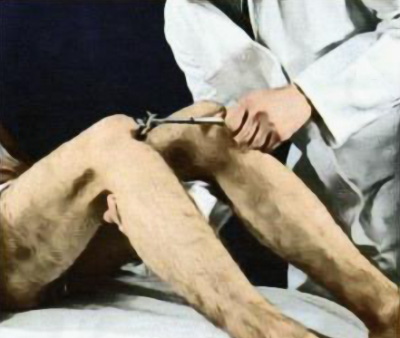 Исследование коленного рефлекса