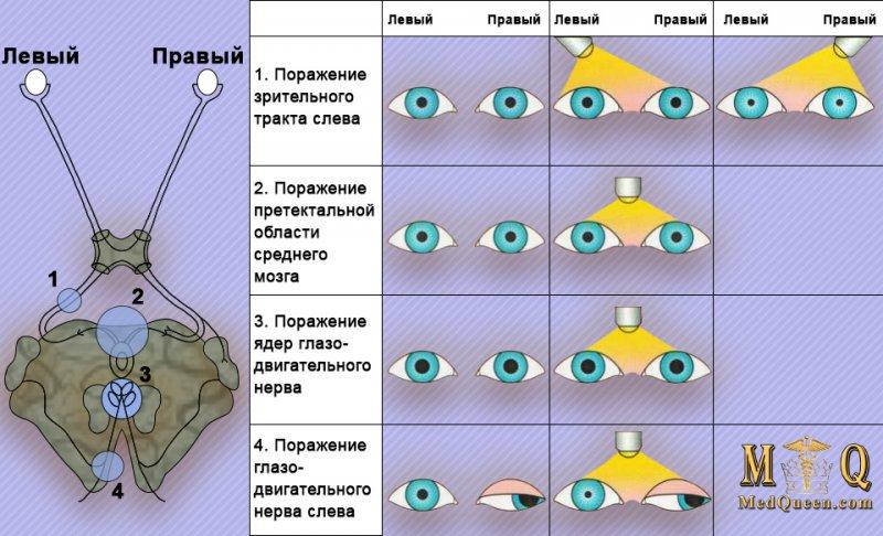 Реакция зрачков на свет при повреждениях головного мозга