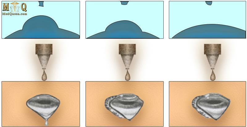 Распределение разных видов глазных капель на поверхности глаза