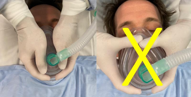 Вентиляция легких у больного, инфицированного COVID-19