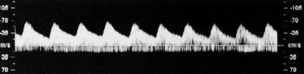 Допплерография: волны кровотока в пупочных артерии и вене (норма)