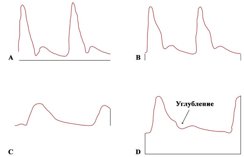 Допплерография маточной артерии