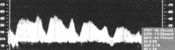 Допплерография: Нормальная волна кровотока в венозном протоке
