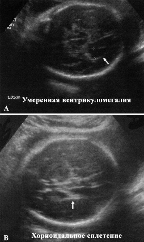 УЗИ: Умеренная вентрикуломегалия