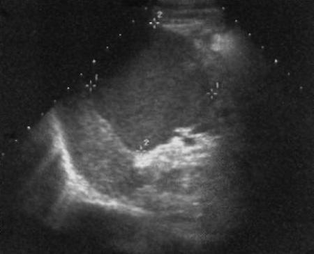 УЗИ: Гипоэхогенный крючковидный отросток поджелудочной железы
