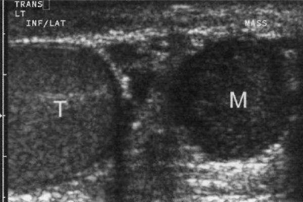 УЗИ: Аденоматоидная опухоль
