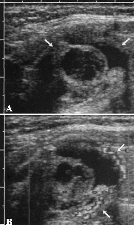 УЗИ: Папиллярный рак щитовидной железы