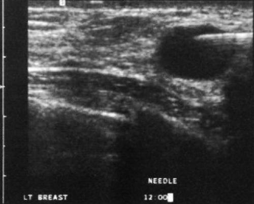 УЗИ: Киста молочной железы
