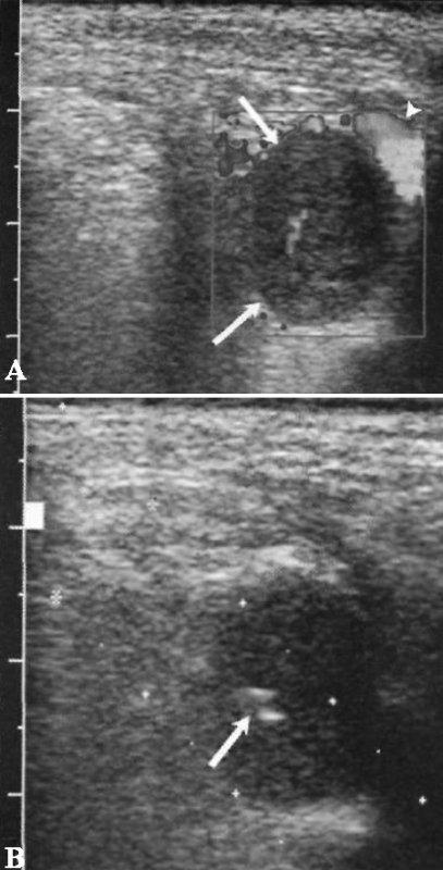 УЗИ: Метастазы рака легкого в надключичный лимфоузел