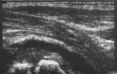 УЗИ: Выпот в полость тазобедренного сустава