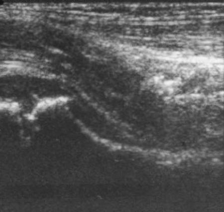 УЗИ: Капсула тазобедренного сустава в норме