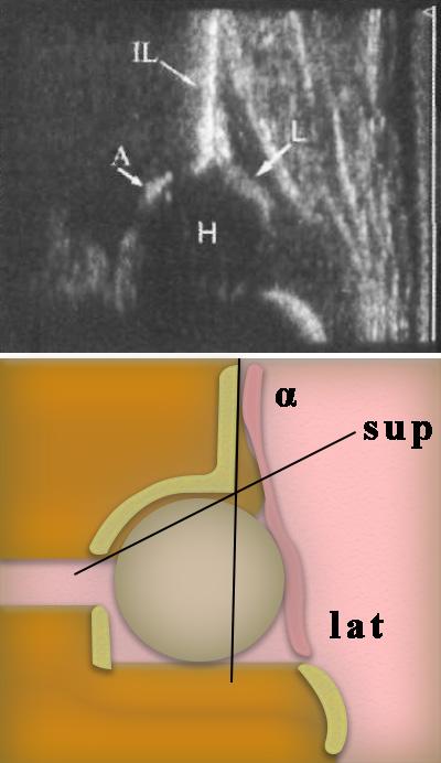 Ультразвуковая анатомия тазобедренного сустава