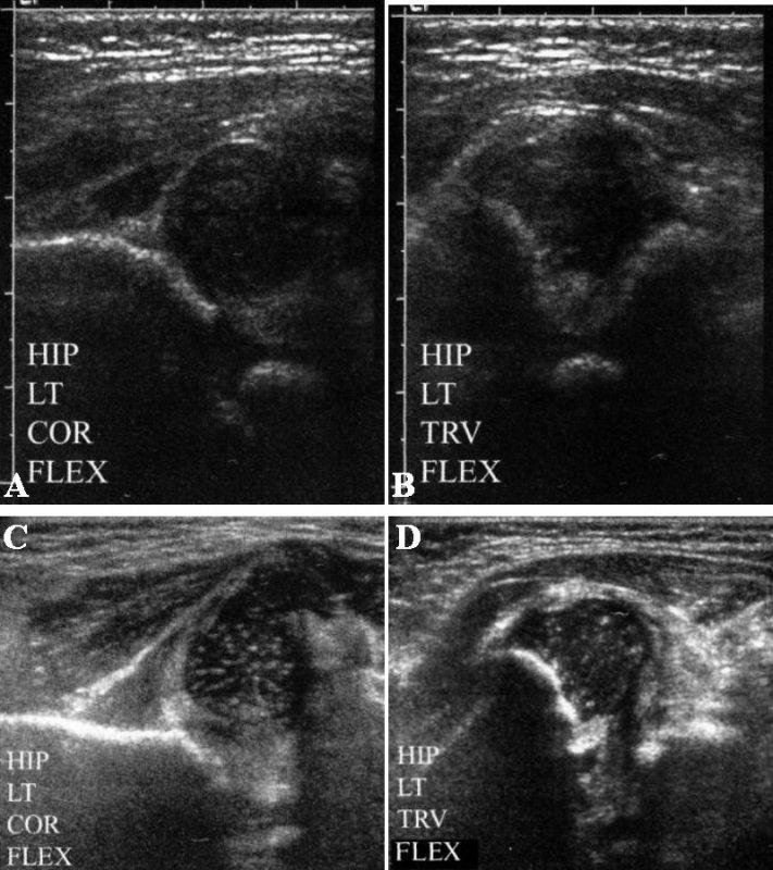 УЗИ: Подвывих и вывих тазобедренного сустава