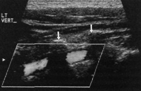 УЗИ: Позвоночная артерия в норме