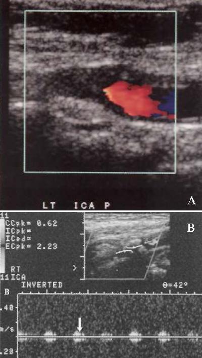 УЗИ: Окклюзия внутренней сонной артерии