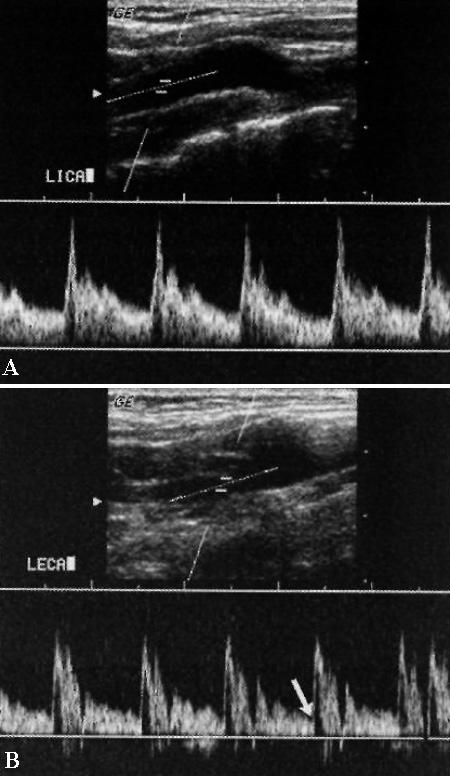 УЗИ: Допплерограмма нормальных сонных артерий