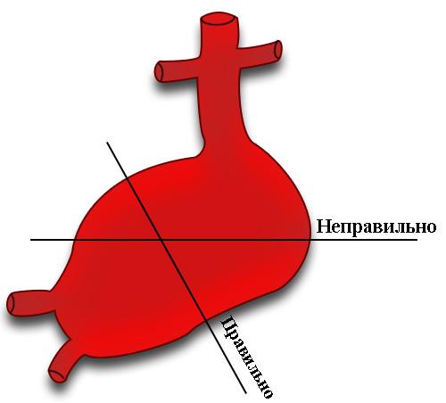 Методика измерения аневризмы