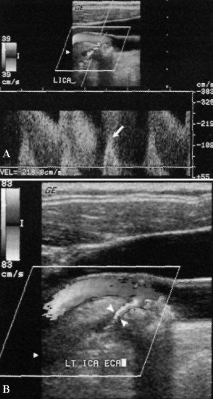 УЗИ: Тяжелый стеноз внутренней сонной артерии на уровне бифуркации