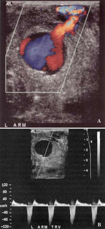 УЗИ: Ложная аневризма артериовенозной диализной фистулы