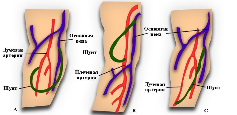 Варианты установки шунта для гемодиализа