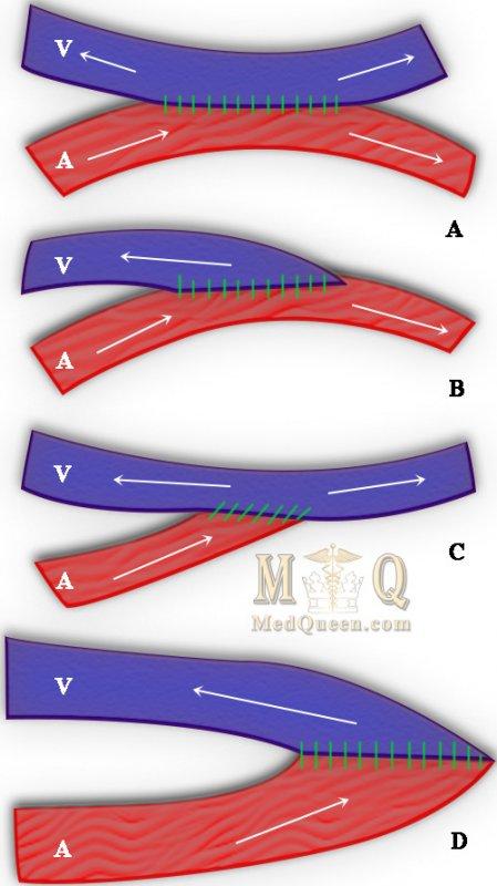 Варианты фистульного соединения артерии и вены